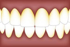dental-3584756_640